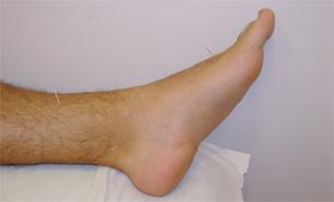 Consulta de acupuntura en Clínica Sanares